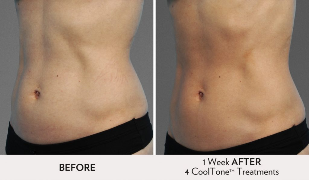 CoolTone SF Before After Image Women Abdomen